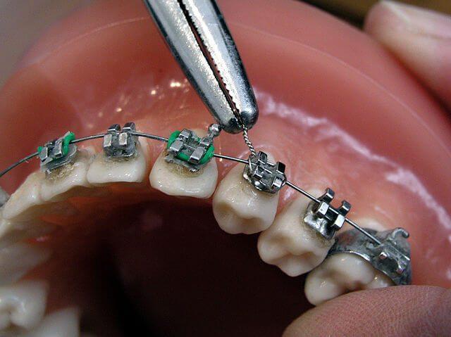 como lavarse los dientes con brackets
