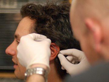 piercieng cartilago