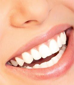 Cómo limpiar o blanquear tus dientes?