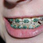 dientes limpieza