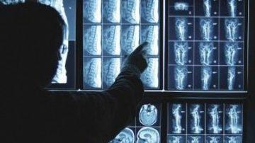 noticia-placas-radiograficas