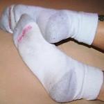 Cómo limpiar y blanquear medias?