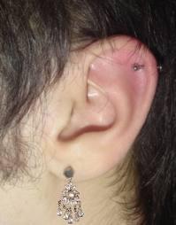Cómo limpiar el agujero del aro de la oreja?