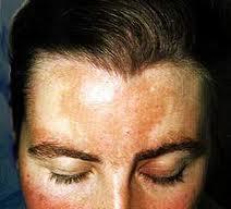 Cómo limpiar/eliminar las manchas de la cara?