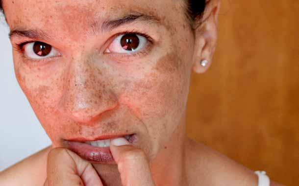 C mo limpiar eliminar las manchas de la cara - Rodillo para lacar ...