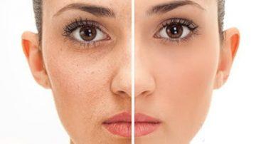 remedio para las manchas en la cara