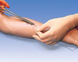 sutura en brazo